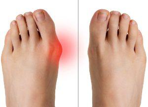 effekterna av att använda buniduo -gelkomfort